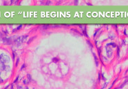 "The Death of ""Life Begins at Conception"""
